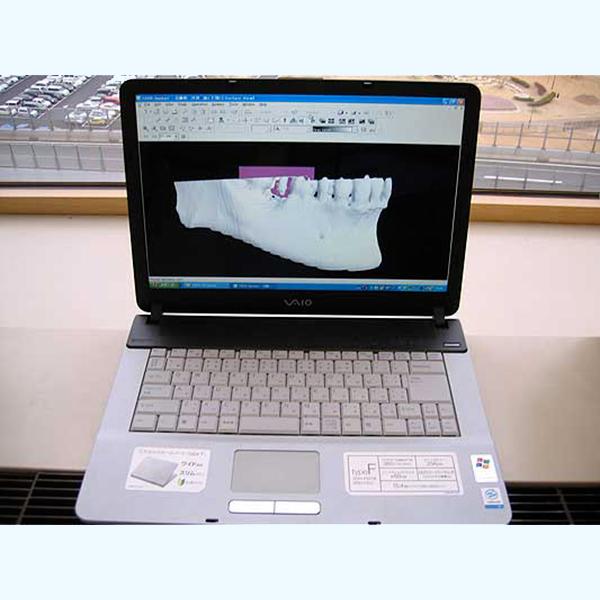 CT画像解析